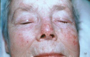 basal-cell-carcinoma-recur-slide6.jpg
